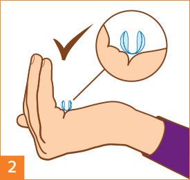 Schritt 2: Kontaktlinsen zum Aufsetzen vorbereiten