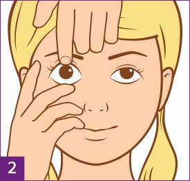 Schritt 2: Bereite Dich vor, die Kontaktlinse abzusetzen