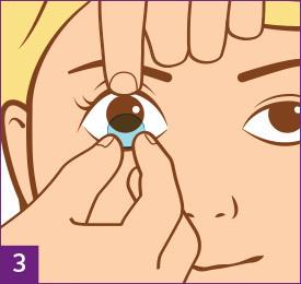 Schritt 3: Kontaktlinsen absetzen